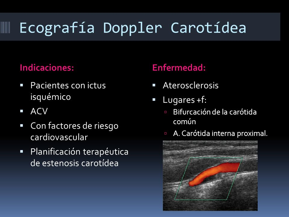 Ecografía Doppler Carotídea Indicaciones:Enfermedad: Pacientes con ictus isquémico ACV Con factores de riesgo cardiovascular Planificación terapéutica