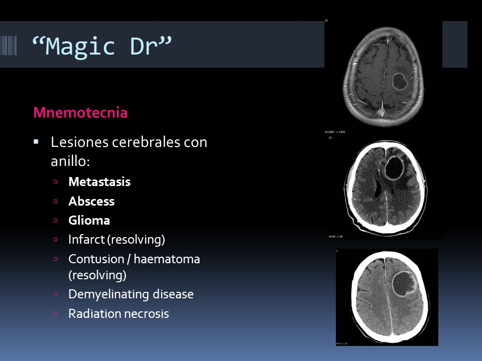 Magic Dr Mnemotecnia Lesiones cerebrales con anillo: Metastasis Abscess Glioma Infarct (resolving) Contusion / haematoma (resolving) Demyelinating dis