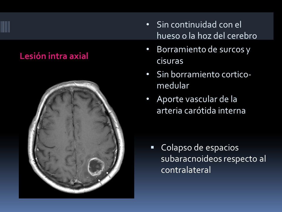 Lesión intra axial Colapso de espacios subaracnoideos respecto al contralateral Sin continuidad con el hueso o la hoz del cerebro Borramiento de surco