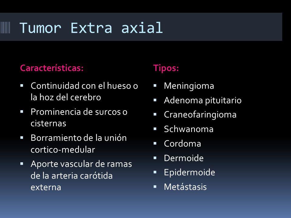 Tumor Extra axial Características:Tipos: Continuidad con el hueso o la hoz del cerebro Prominencia de surcos o cisternas Borramiento de la unión corti