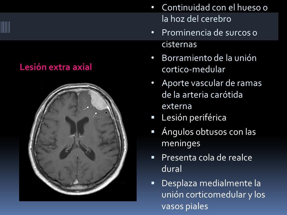 Lesión extra axial Lesión periférica Ángulos obtusos con las meninges Presenta cola de realce dural Desplaza medialmente la unión corticomedular y los