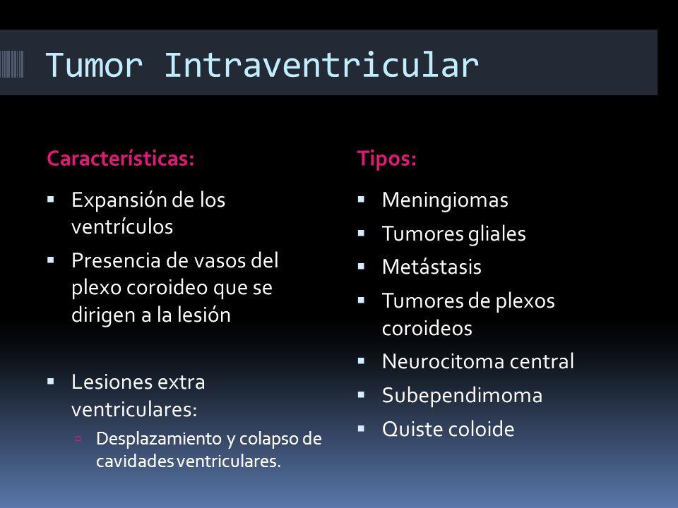 Tumor Intraventricular Características:Tipos: Expansión de los ventrículos Presencia de vasos del plexo coroideo que se dirigen a la lesión Lesiones e