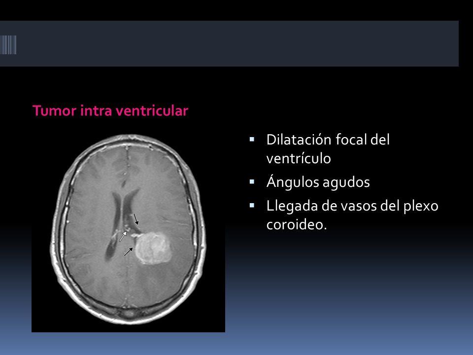 Tumor intra ventricular Dilatación focal del ventrículo Ángulos agudos Llegada de vasos del plexo coroideo.