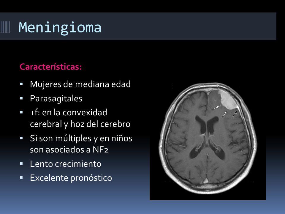 Meningioma Características: Mujeres de mediana edad Parasagitales +f: en la convexidad cerebral y hoz del cerebro Si son múltiples y en niños son asoc