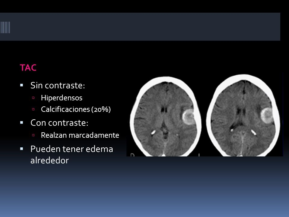 TAC Sin contraste: Hiperdensos Calcificaciones (20%) Con contraste: Realzan marcadamente Pueden tener edema alrededor