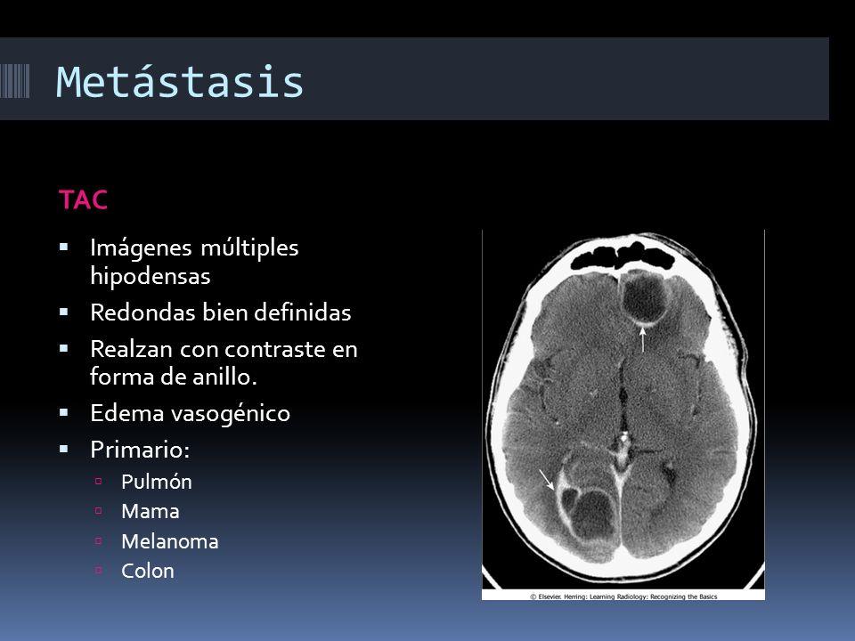 Metástasis TAC Imágenes múltiples hipodensas Redondas bien definidas Realzan con contraste en forma de anillo. Edema vasogénico Primario: Pulmón Mama