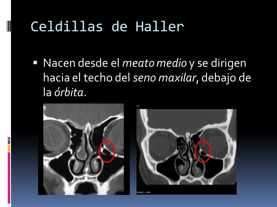 Celdillas de Haller Nacen desde el meato medio y se dirigen hacia el techo del seno maxilar, debajo de la órbita.