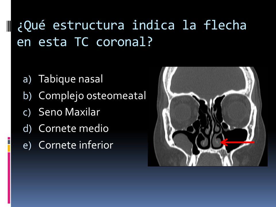 ¿Qué estructura indica la flecha en esta TC coronal? a) Tabique nasal b) Complejo osteomeatal c) Seno Maxilar d) Cornete medio e) Cornete inferior