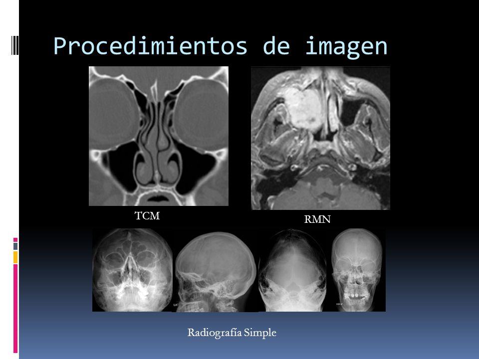 Procedimientos de imagen TCM RMN Radiografía Simple