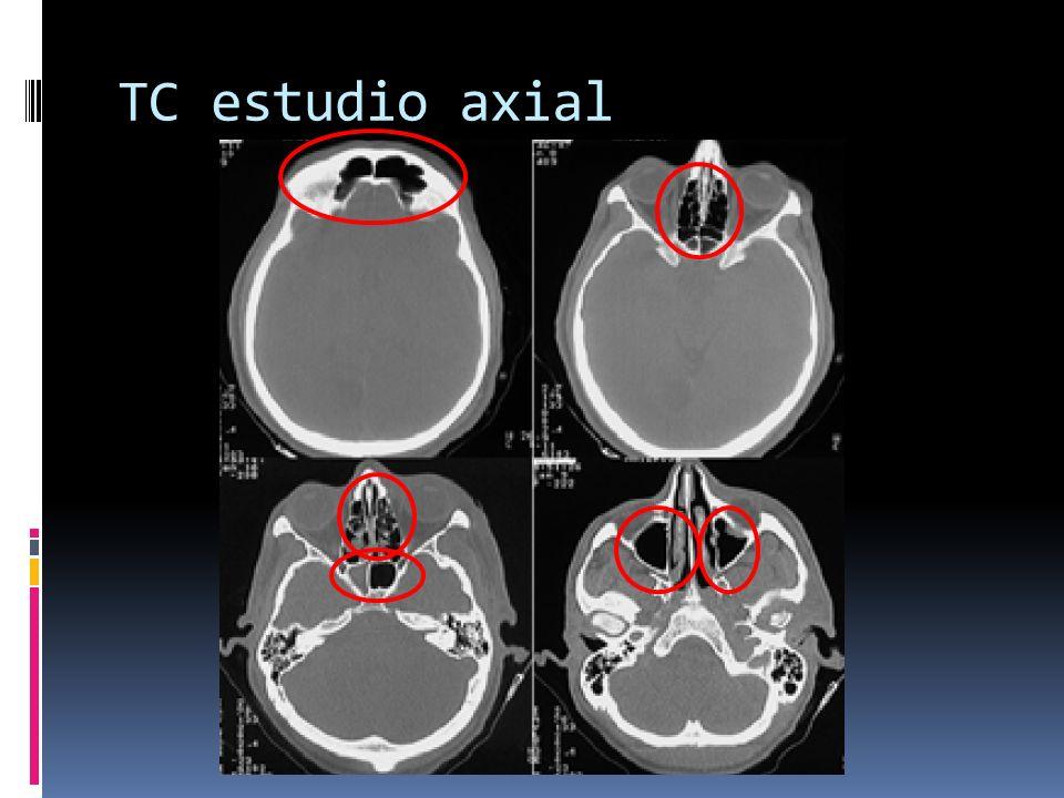 TC estudio axial