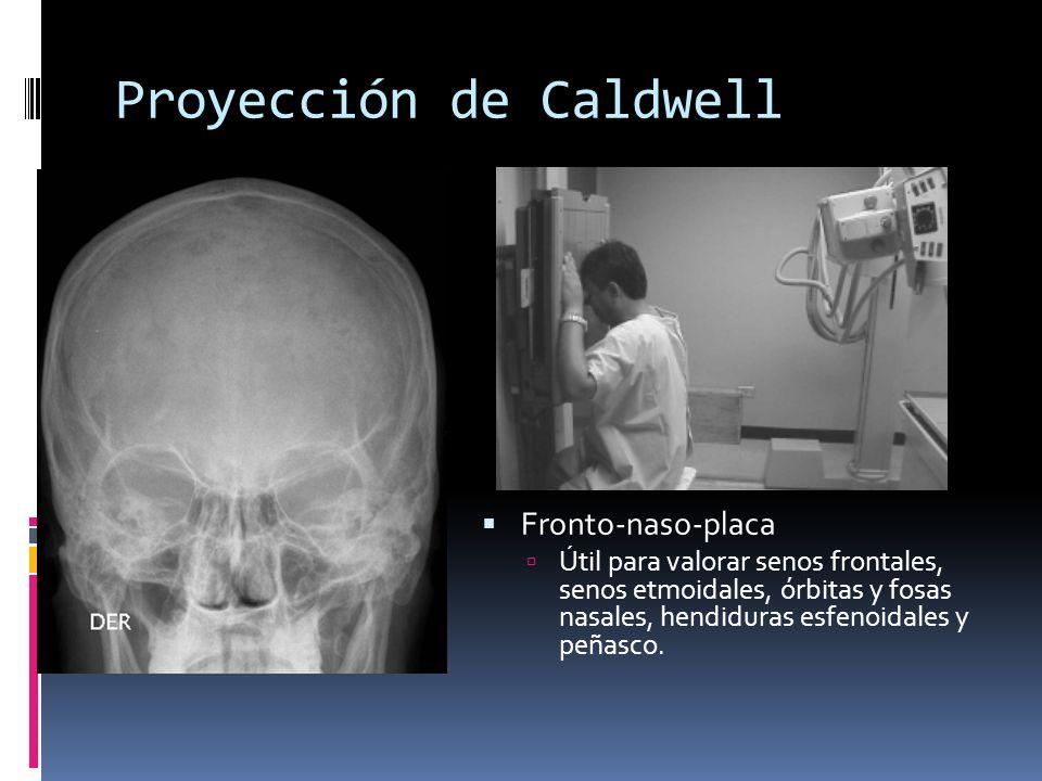 Proyección de Caldwell Fronto-naso-placa Útil para valorar senos frontales, senos etmoidales, órbitas y fosas nasales, hendiduras esfenoidales y peñas