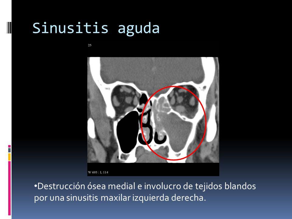Sinusitis aguda Destrucción ósea medial e involucro de tejidos blandos por una sinusitis maxilar izquierda derecha.