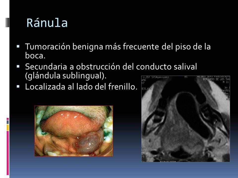 Ránula Tumoración benigna más frecuente del piso de la boca. Secundaria a obstrucción del conducto salival (glándula sublingual). Localizada al lado d