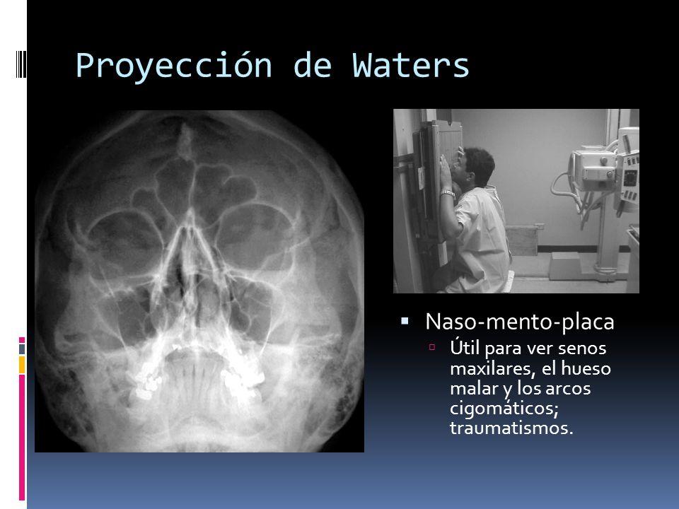 Proyección de Waters Naso-mento-placa Útil para ver senos maxilares, el hueso malar y los arcos cigomáticos; traumatismos.