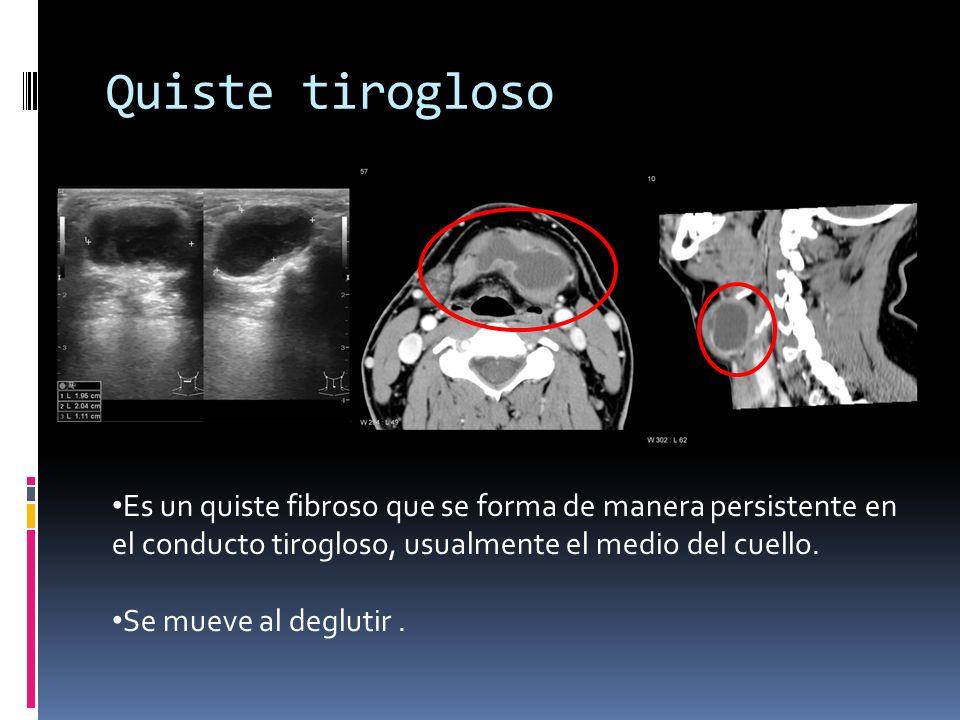 Quiste tirogloso Es un quiste fibroso que se forma de manera persistente en el conducto tirogloso, usualmente el medio del cuello. Se mueve al degluti