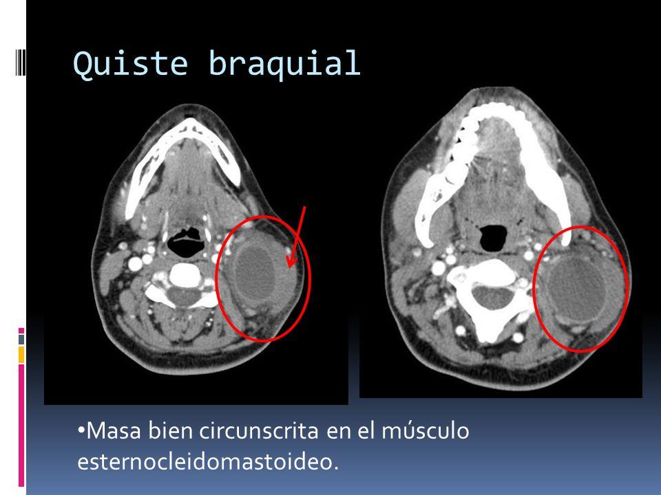 Quiste braquial Masa bien circunscrita en el músculo esternocleidomastoideo.