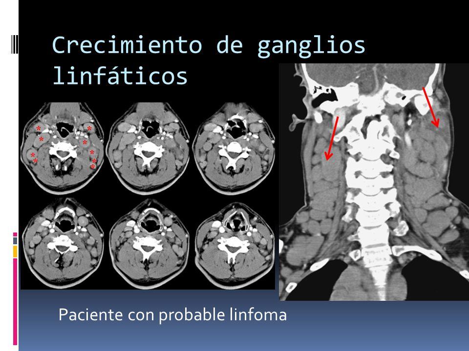 Crecimiento de ganglios linfáticos Paciente con probable linfoma
