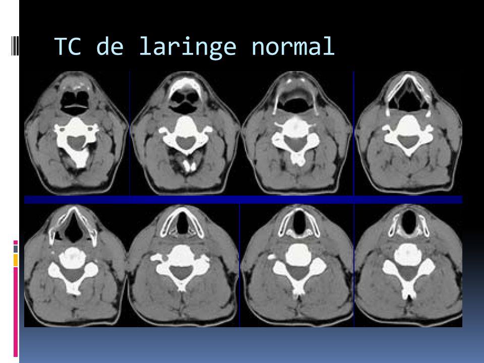 TC de laringe normal