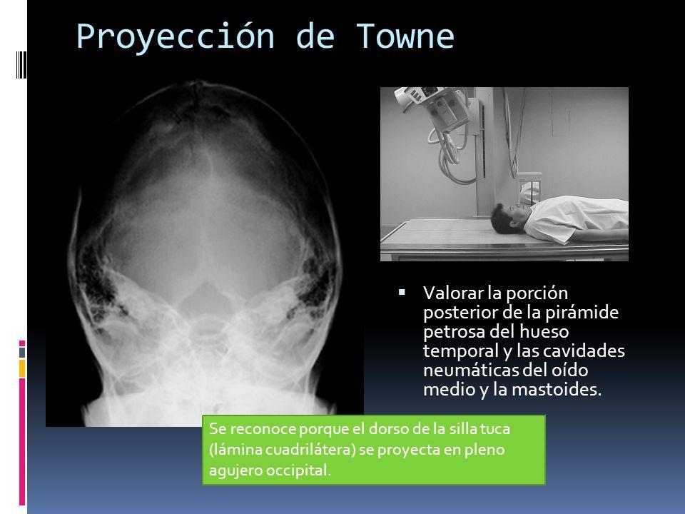 Proyección de Towne Valorar la porción posterior de la pirámide petrosa del hueso temporal y las cavidades neumáticas del oído medio y la mastoides. S