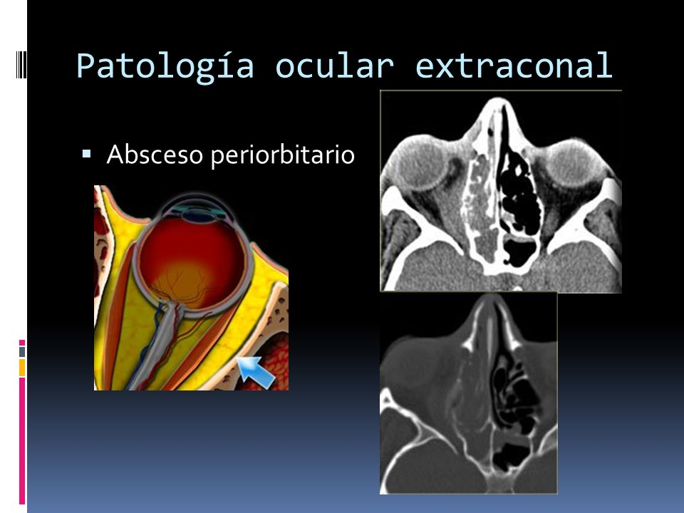 Patología ocular extraconal Absceso periorbitario