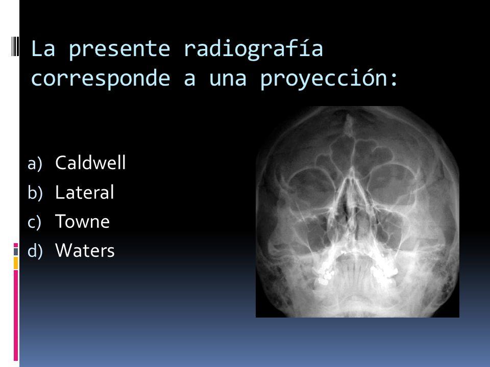 La presente radiografía corresponde a una proyección: a) Caldwell b) Lateral c) Towne d) Waters