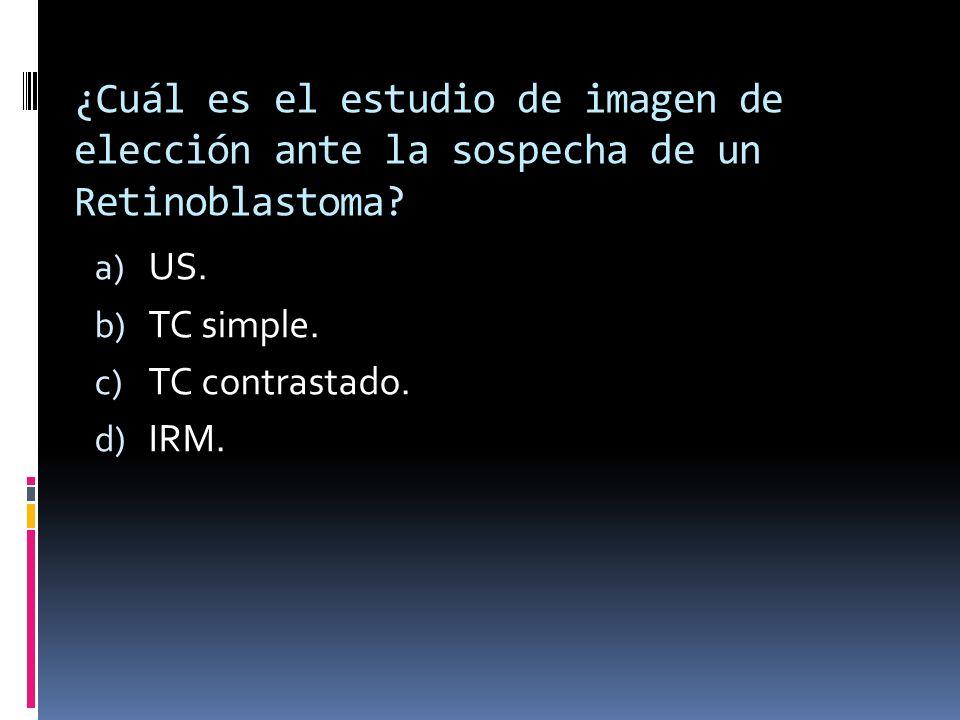¿Cuál es el estudio de imagen de elección ante la sospecha de un Retinoblastoma? a) US. b) TC simple. c) TC contrastado. d) IRM.