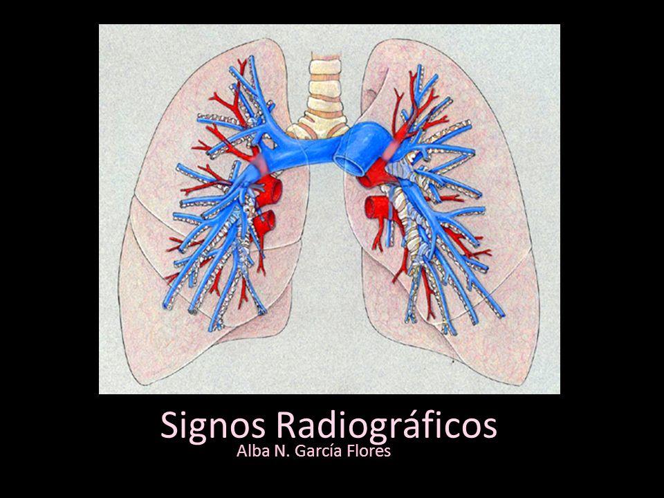 Signos Radiográficos Alba N. García Flores