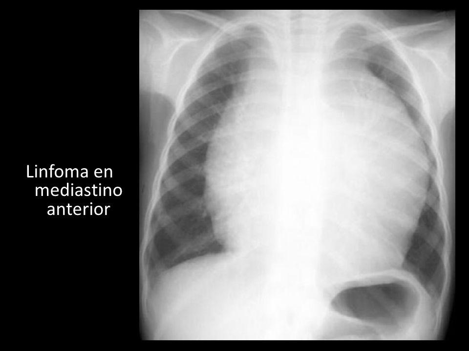 Linfoma en mediastino anterior