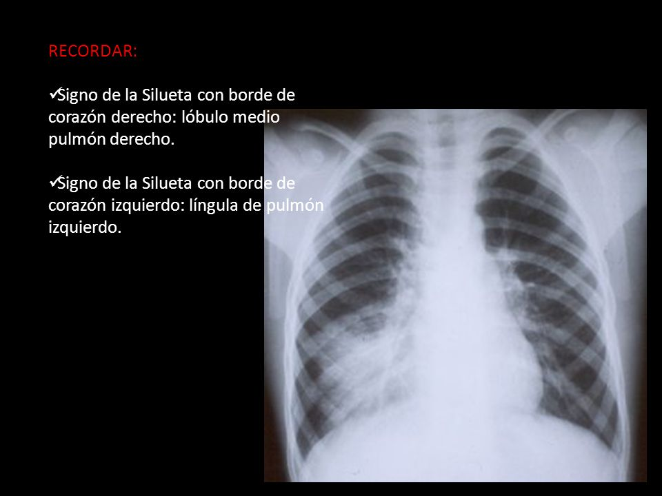 RECORDAR: Signo de la Silueta con borde de corazón derecho: lóbulo medio pulmón derecho. Signo de la Silueta con borde de corazón izquierdo: língula d