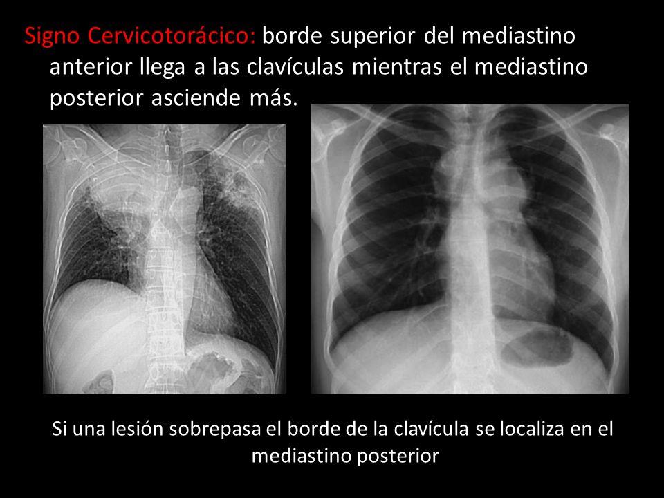 Signo Cervicotorácico: borde superior del mediastino anterior llega a las clavículas mientras el mediastino posterior asciende más. Si una lesión sobr