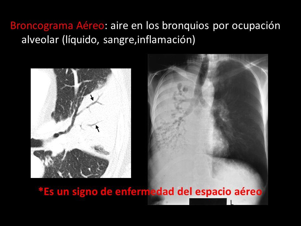 Broncograma Aéreo: aire en los bronquios por ocupación alveolar (líquido, sangre,inflamación) *Es un signo de enfermedad del espacio aéreo