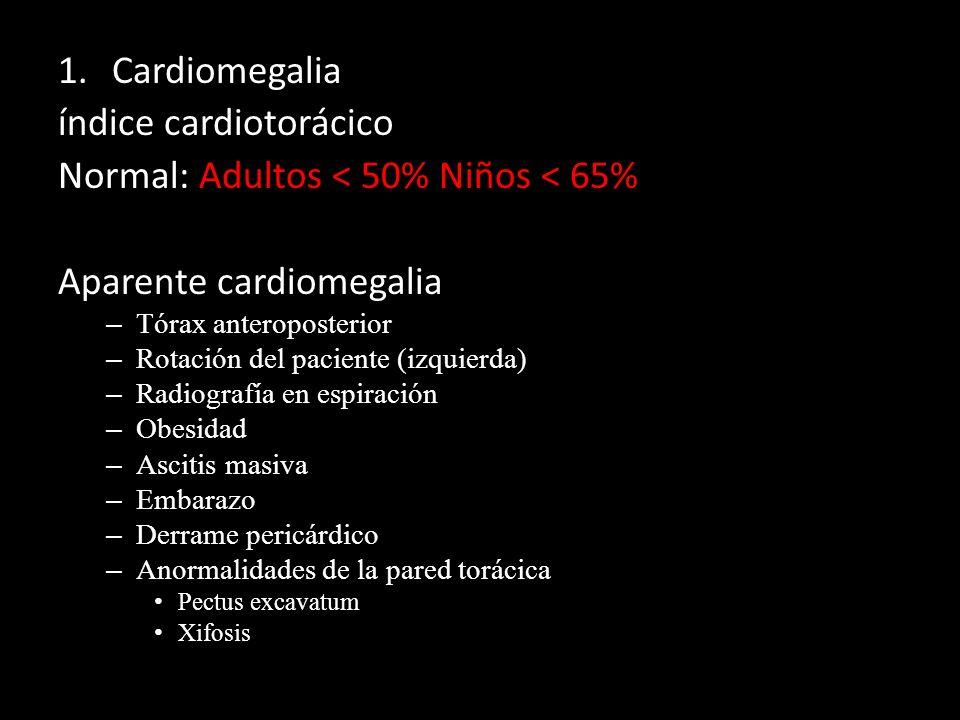 1.Cardiomegalia índice cardiotorácico Normal: Adultos < 50% Niños < 65% Aparente cardiomegalia – Tórax anteroposterior – Rotación del paciente (izquie