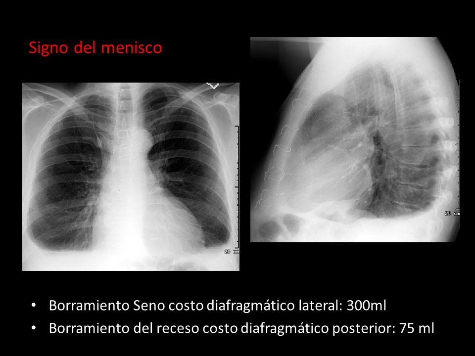 Signo del menisco Borramiento Seno costo diafragmático lateral: 300ml Borramiento del receso costo diafragmático posterior: 75 ml