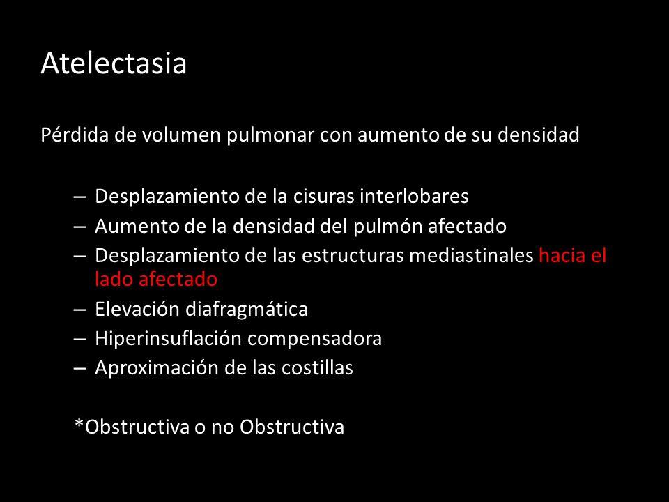Atelectasia Pérdida de volumen pulmonar con aumento de su densidad – Desplazamiento de la cisuras interlobares – Aumento de la densidad del pulmón afe