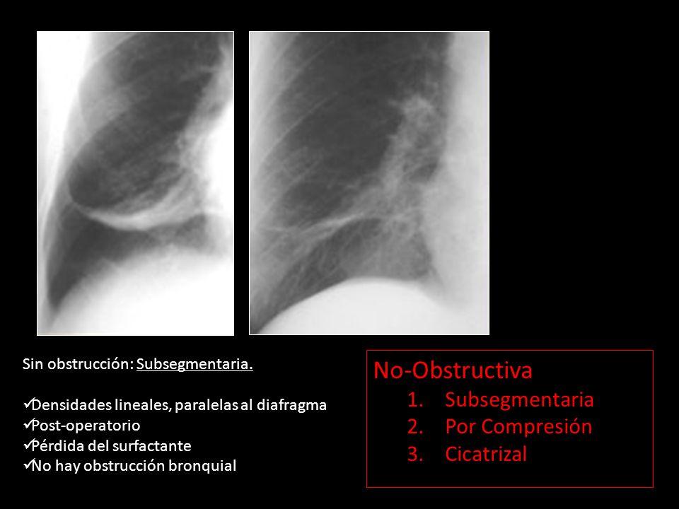 Sin obstrucción: Subsegmentaria. Densidades lineales, paralelas al diafragma Post-operatorio Pérdida del surfactante No hay obstrucción bronquial No-O