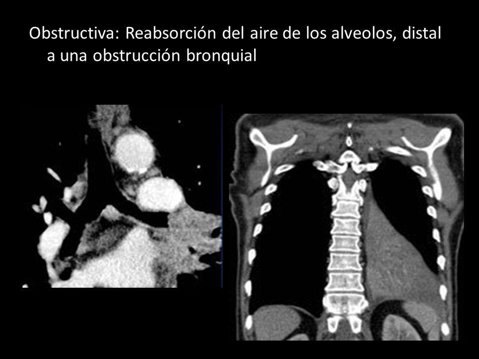 Obstructiva: Reabsorción del aire de los alveolos, distal a una obstrucción bronquial