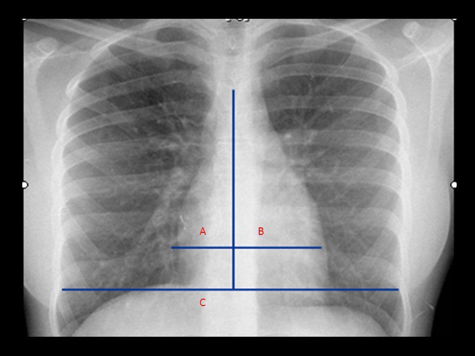 No obstructiva: Por compresión Derrame pleural Neumotórax Tumor pulmonar No-Obstructiva 1.Subsegmentaria 2.Por Compresión 3.Cicatrizal