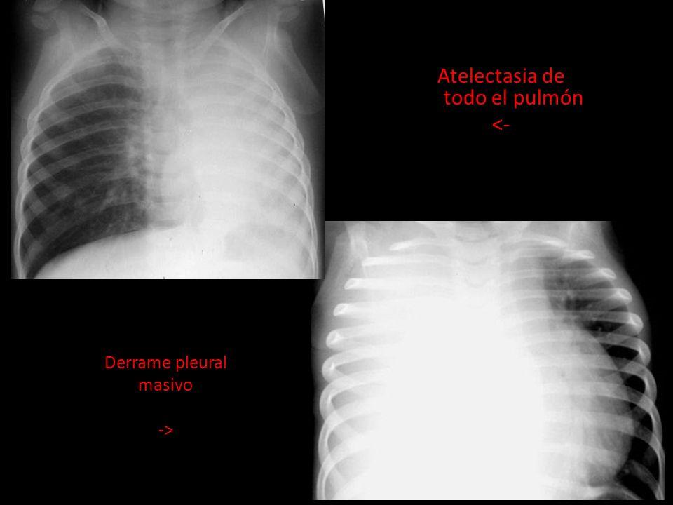 Atelectasia de todo el pulmón <- Derrame pleural masivo ->