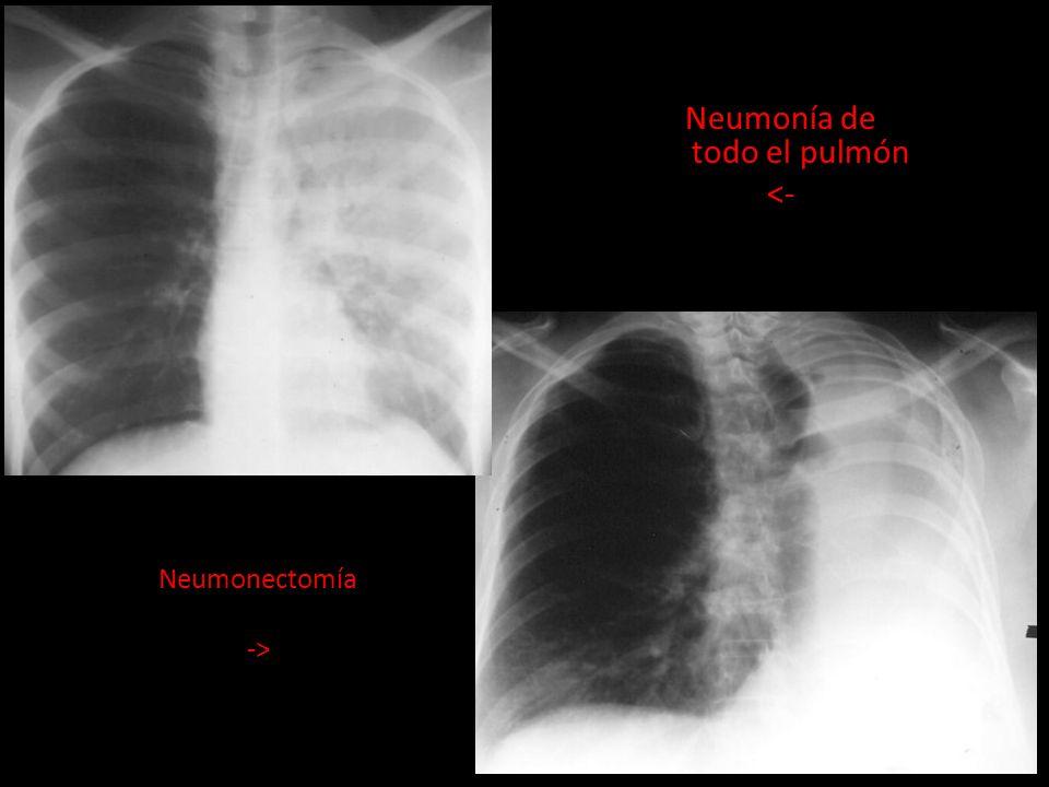 Neumonía de todo el pulmón <- Neumonectomía ->