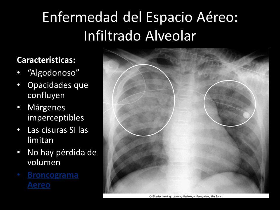 Enfermedad del Espacio Aéreo: Infiltrado Alveolar Características: Algodonoso Opacidades que confluyen Márgenes imperceptibles Las cisuras SI las limi