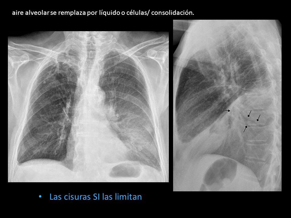 Las cisuras SI las limitan aire alveolar se remplaza por líquido o células/ consolidación.