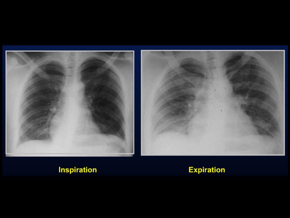 No obstructiva: cicatrizal localizada – tuberculosis Generalizada - fibrosis No-Obstructiva 1.Subsegmentaria 2.Por Compresión 3.Cicatrizal