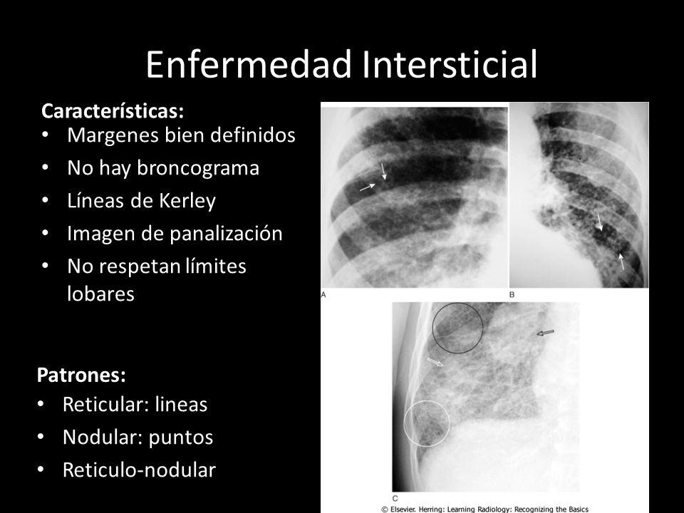 Enfermedad Intersticial Características: Margenes bien definidos No hay broncograma Líneas de Kerley Imagen de panalización No respetan límites lobare