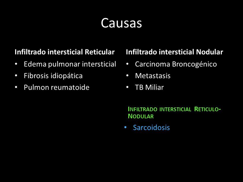 Causas Infiltrado intersticial Reticular Edema pulmonar intersticial Fibrosis idiopática Pulmon reumatoide Infiltrado intersticial Nodular Carcinoma B