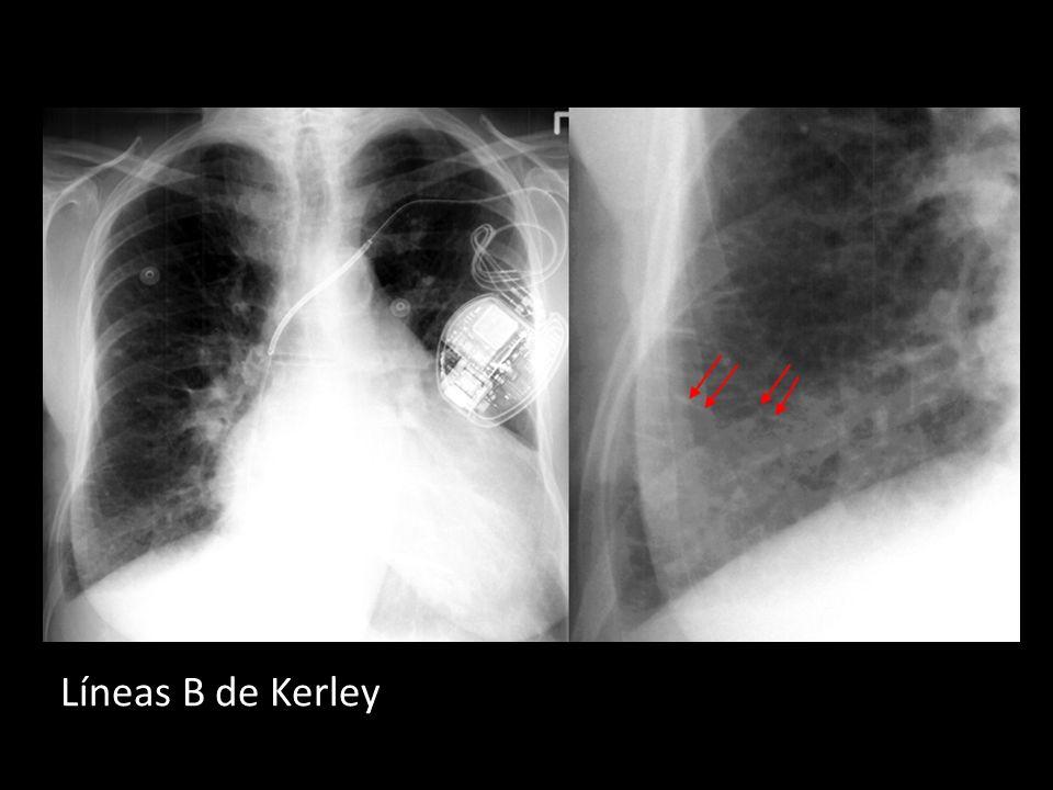 Líneas B de Kerley