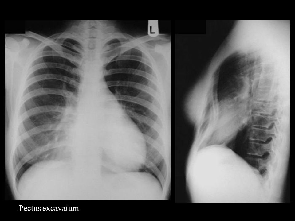 Engrosamiento intersticial, llenado parcial del espacio aéreo (Alveolares e Intersticiales)