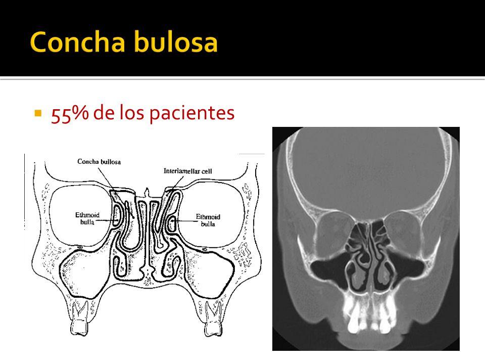 55% de los pacientes