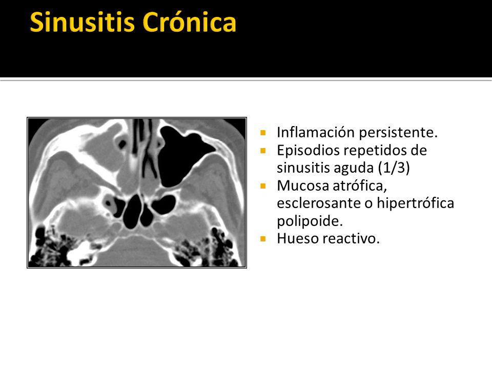 Inflamación persistente. Episodios repetidos de sinusitis aguda (1/3) Mucosa atrófica, esclerosante o hipertrófica polipoide. Hueso reactivo.