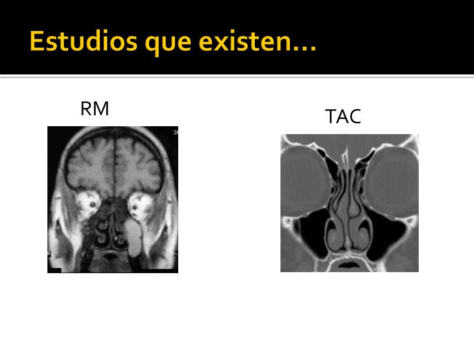 PA de SPN Específica para senos frontales y etmoidales