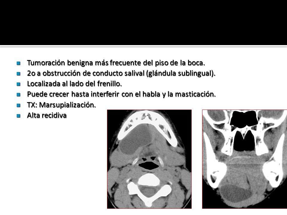 Tumoración benigna más frecuente del piso de la boca. Tumoración benigna más frecuente del piso de la boca. 2o a obstrucción de conducto salival (glán